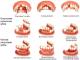 Методы восстановления зубов